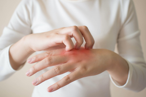 7 Relief tips for Eczema