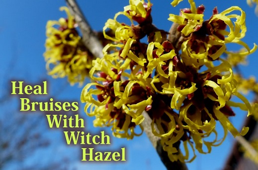 bruise-witch-hazel