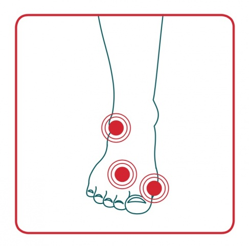 areas of the foot affected by bunions