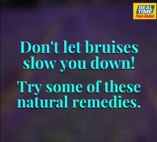 natural-remedies-for-bruises