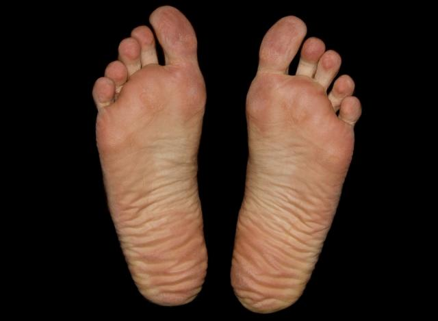 common-foot-problems-runners