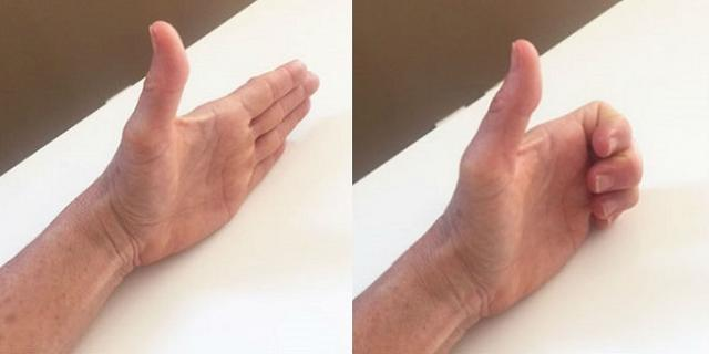 hand-exercises-reduce-arthritis-pain