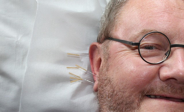 acupuncture is a natural way to relieve chronic pain