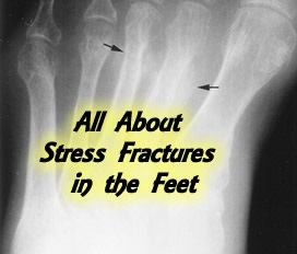 all-about-stress-fractures-feet