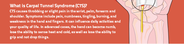 Tips to Relieve Carpal Tunnel Syndrome