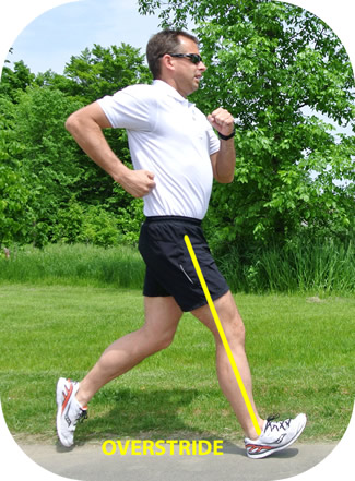 Overstride may be causing your runner's knee