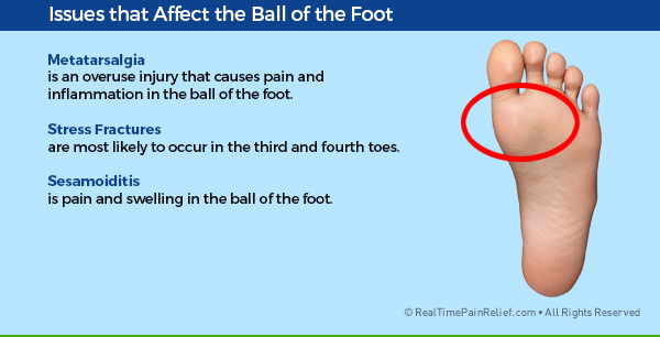 Painful conditions that affect the ball of the foot