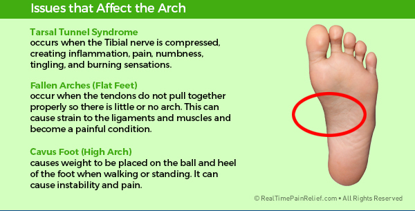 Painful conditions that affect the arch