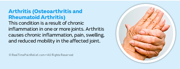 arthritis is a type of hand pain